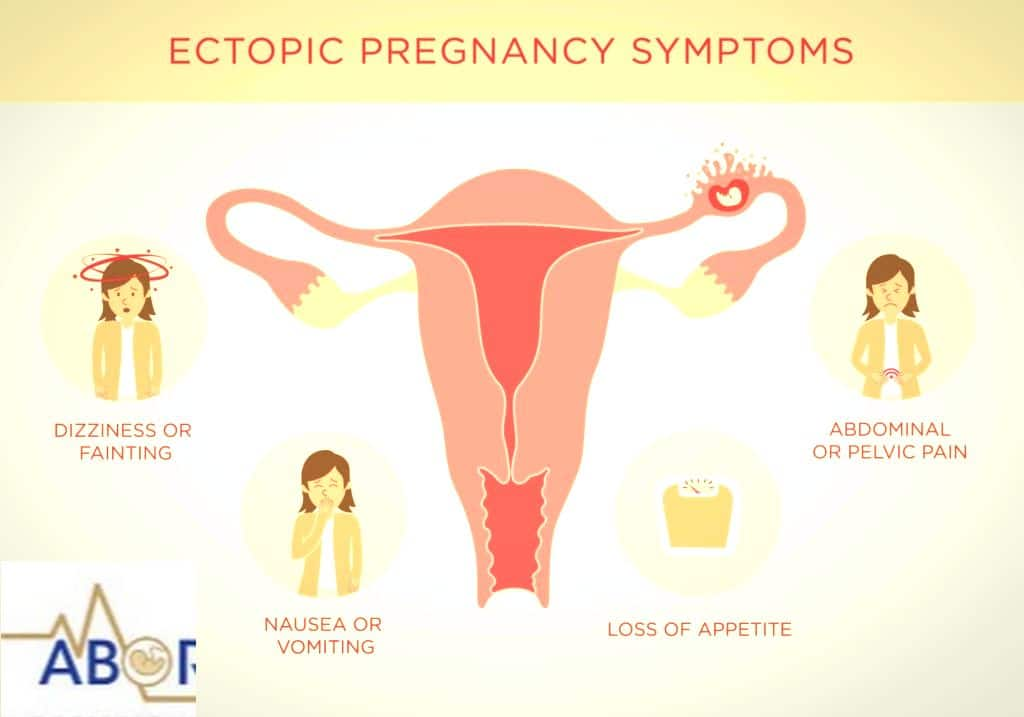 You are currently viewing What are the Symptoms of Ectopic pregnancy | Abortion Clinic